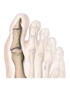 Kép 4: Egészséges-láb