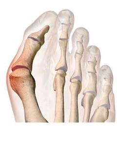 Kép 5: A-bütyök-mint-lábdeformitás-más-néven-Hallux-valgus